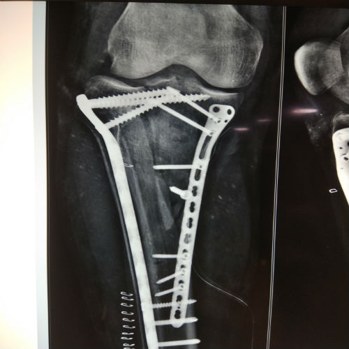 PROXIMAL TIBIA – Joint Replacement and Trauma